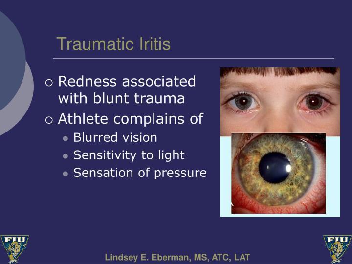Traumatic Iritis