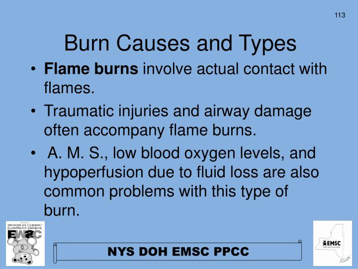 Burn Causes and Types