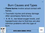 burn causes and types1