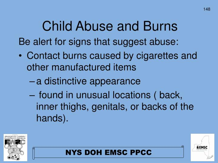 Child Abuse and Burns