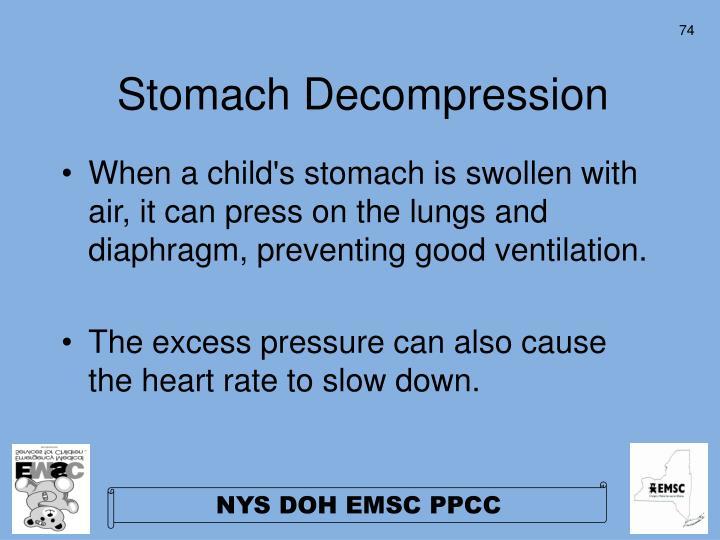 Stomach Decompression