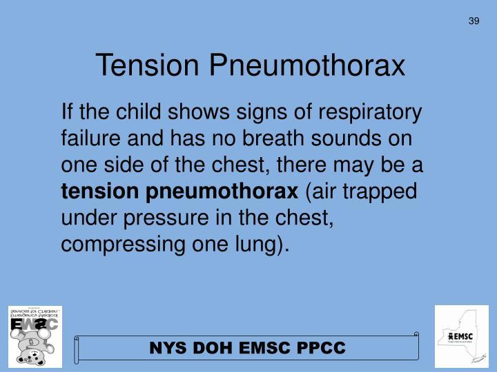 Tension Pneumothorax