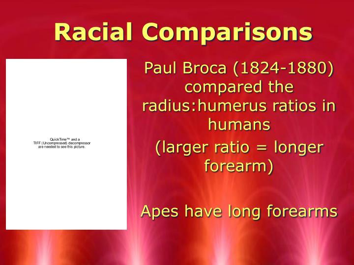 Racial Comparisons