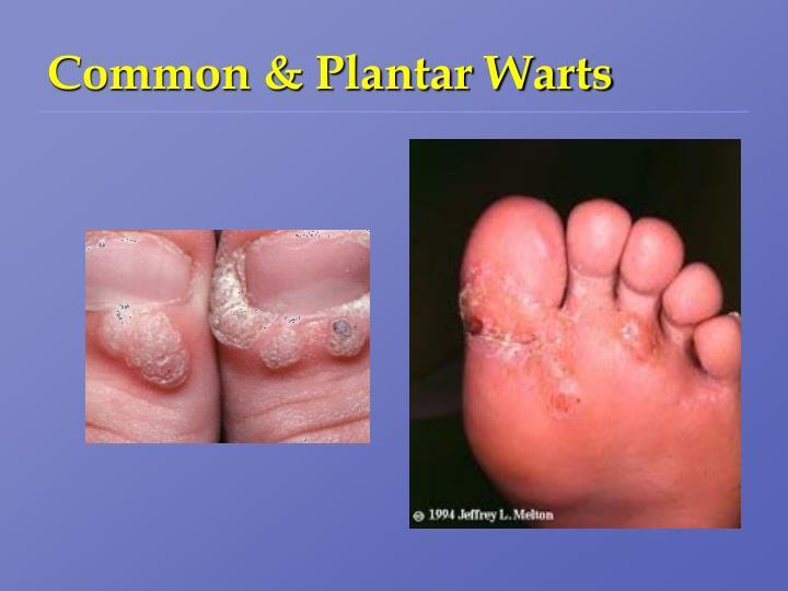 Common & Plantar Warts