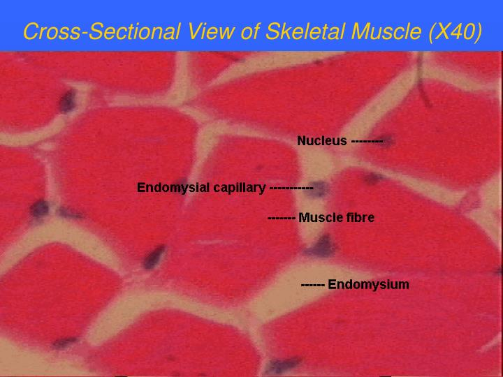 Cross-Sectional View of Skeletal Muscle (X40)