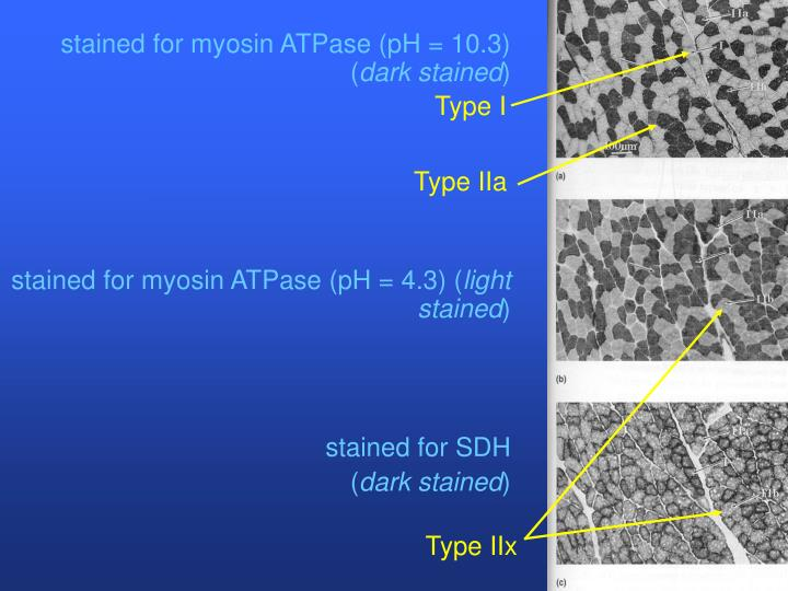 stained for myosin ATPase (pH = 10.3) (