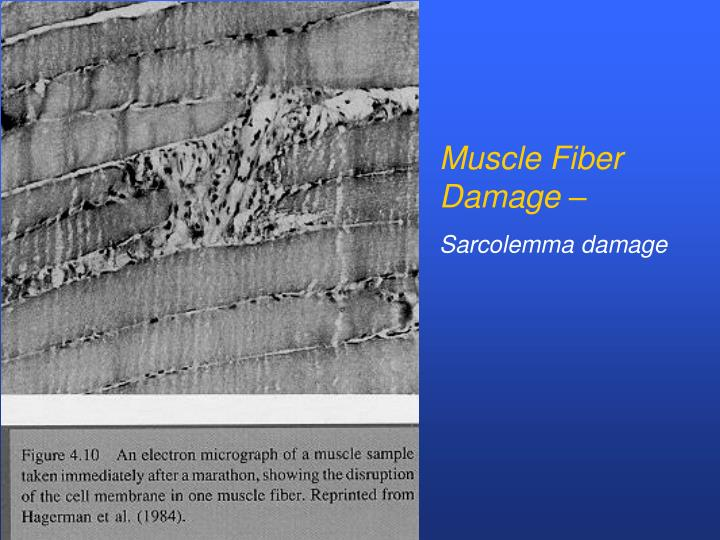 Muscle Fiber Damage –