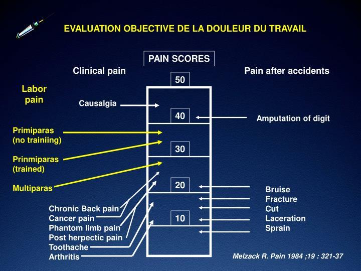 EVALUATION OBJECTIVE DE LA DOULEUR DU TRAVAIL