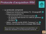 protocole d acquisition irm