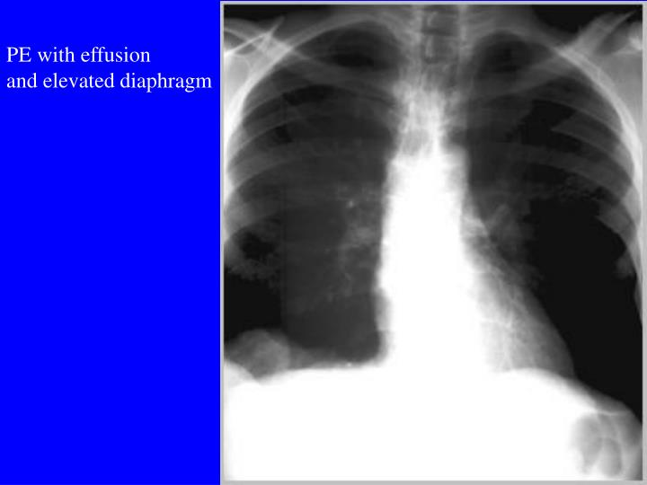 PE with effusion