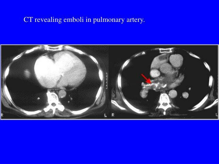 CT revealing emboli in pulmonary artery.