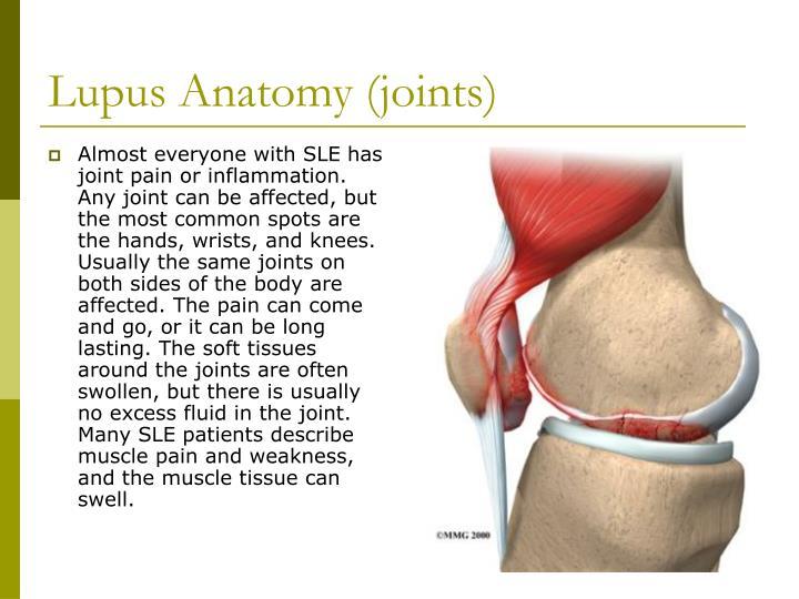 Lupus Anatomy (joints)
