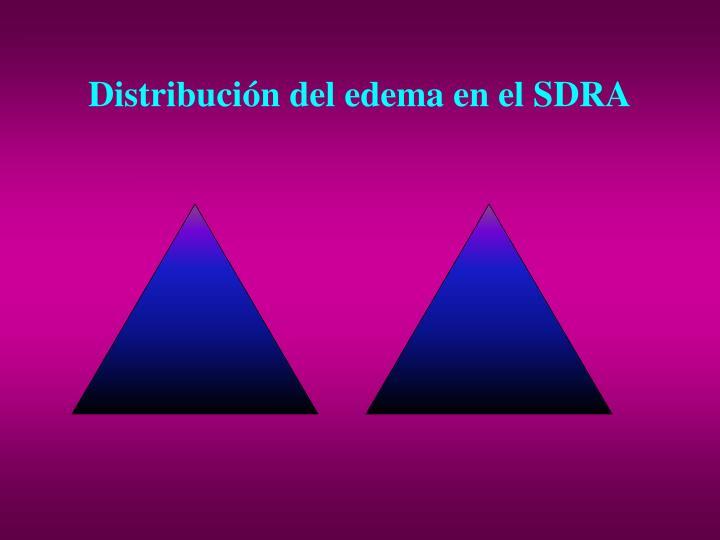 Distribución del edema en el SDRA