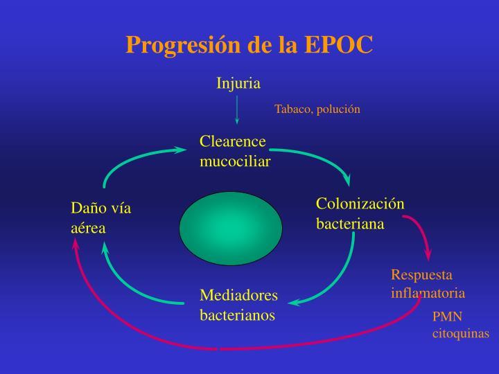 Progresión de la EPOC