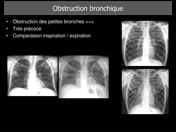 Obstruction bronchique