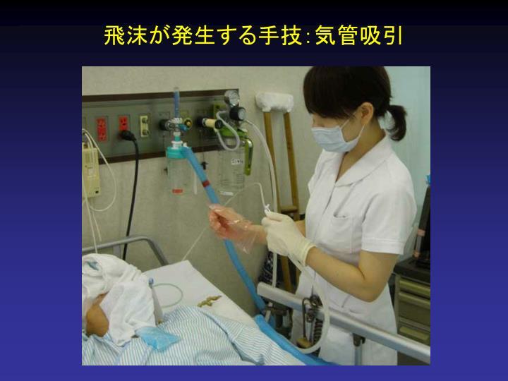 飛沫が発生する手技:気管吸引