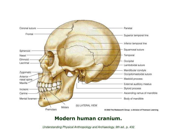 Modern human cranium.