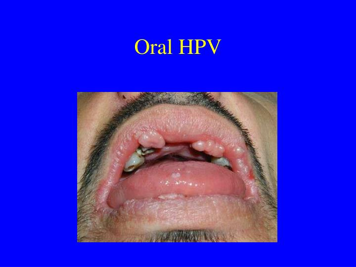 Oral HPV