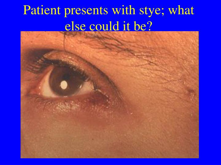 Patient presents with stye; what else could it be?