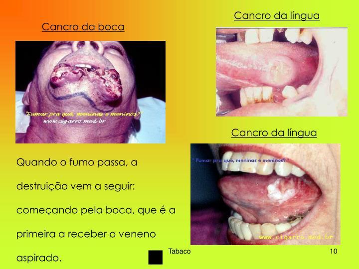 Cancro da língua