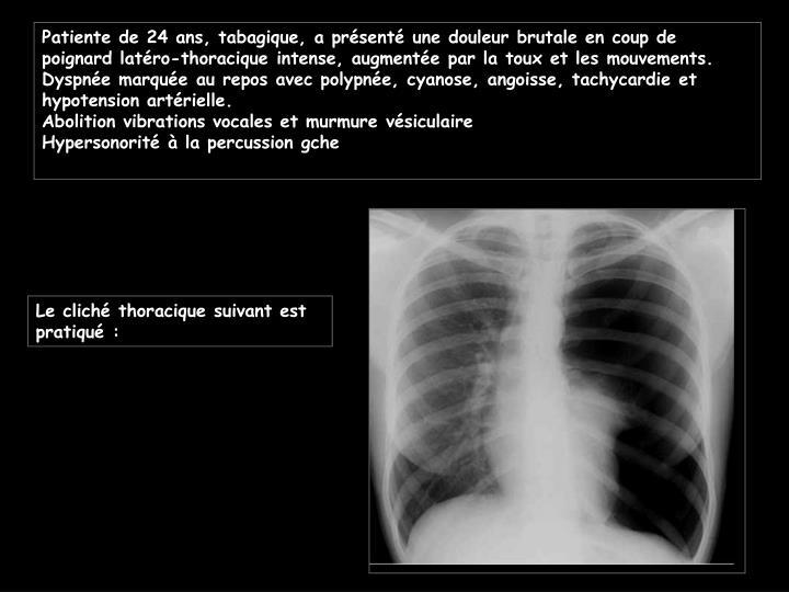 Patiente de 24 ans, tabagique, a présenté une douleur brutale en coup de poignard latéro-thoracique intense, augmentée par la toux et les mouvements.