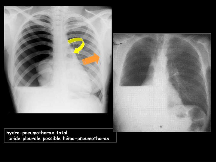 hydro-pneumothorax total