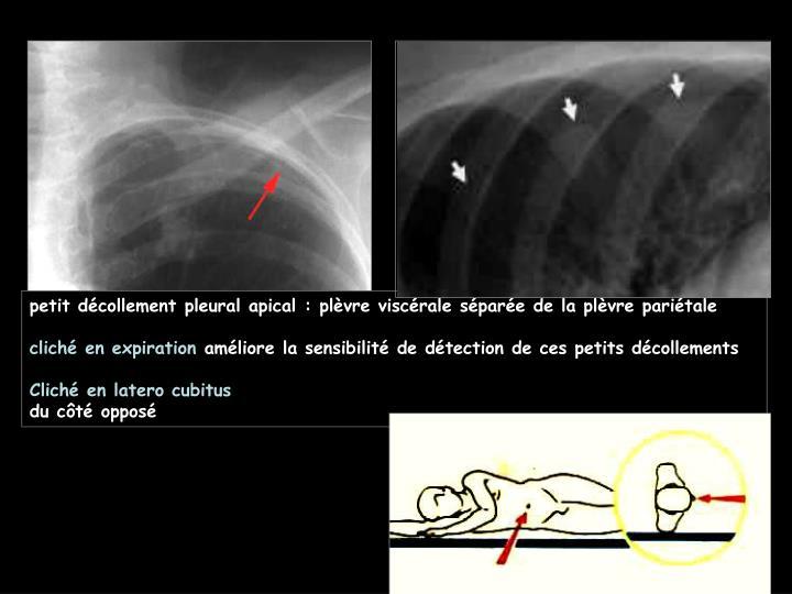 petit décollement pleural apical : plèvre viscérale séparée de la plèvre pariétale