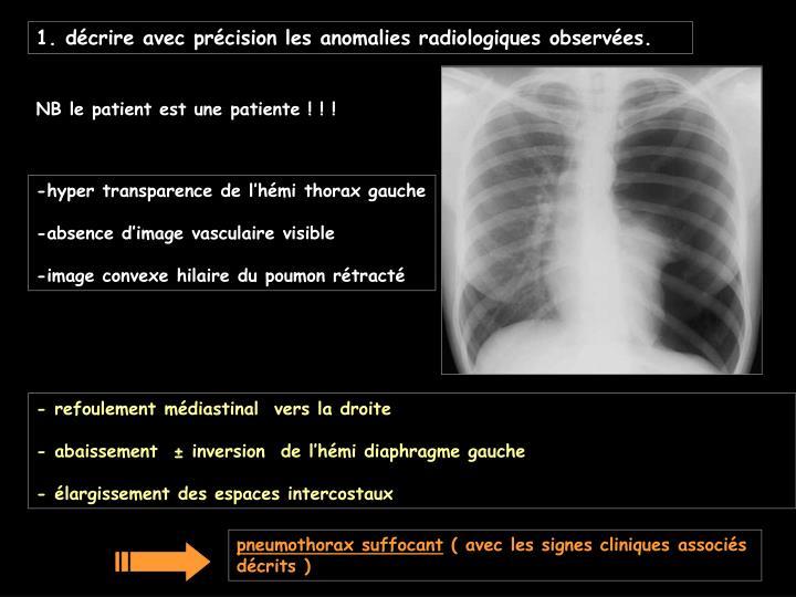 1. décrire avec précision les anomalies radiologiques observées.