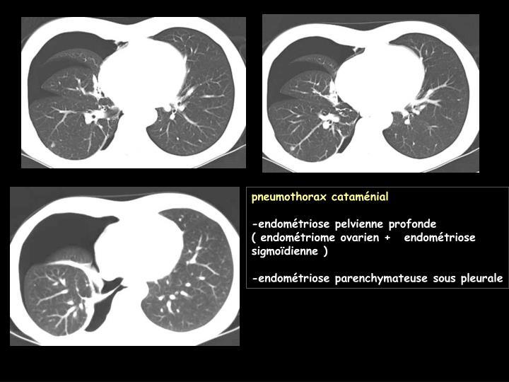 pneumothorax cataménial