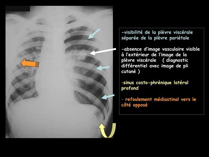-visibilité de la plèvre viscérale séparée de la plèvre pariétale