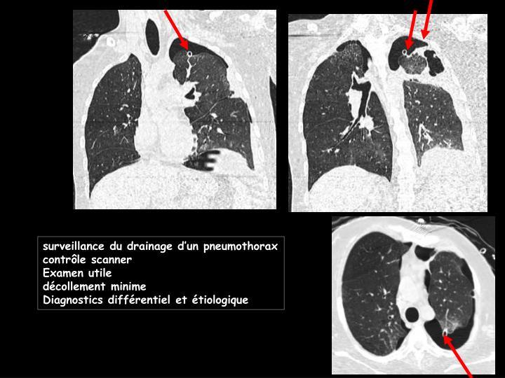 surveillance du drainage d'un pneumothorax
