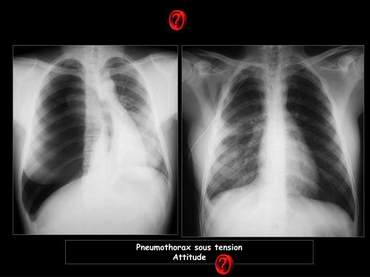 Pneumothorax sous tension