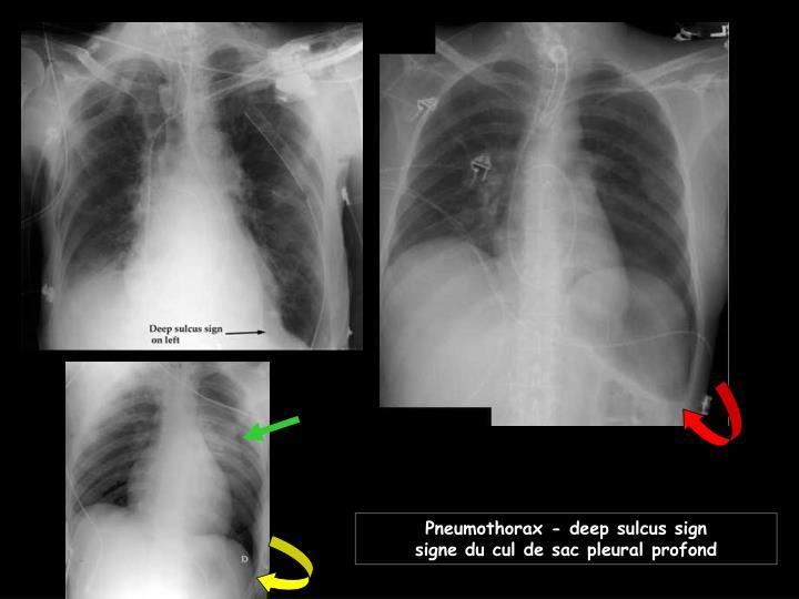 Pneumothorax - deep sulcus sign