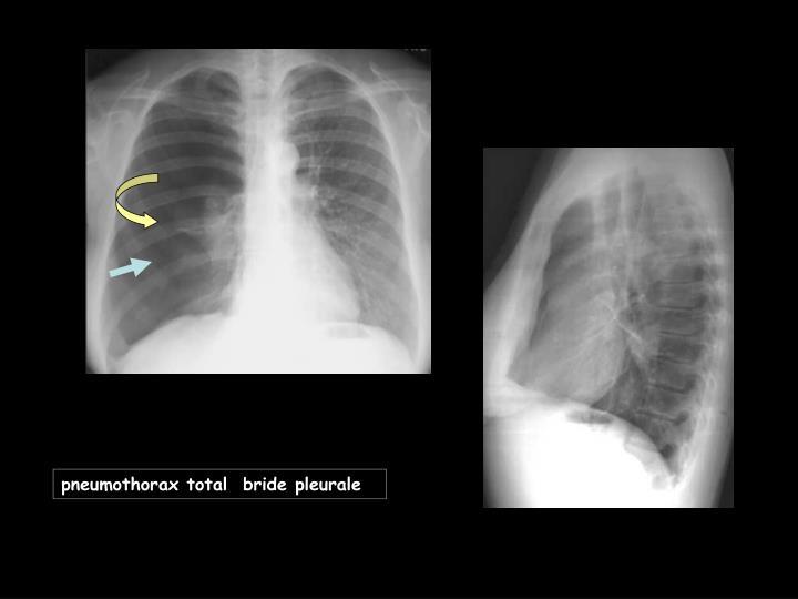 pneumothorax total  bride pleurale
