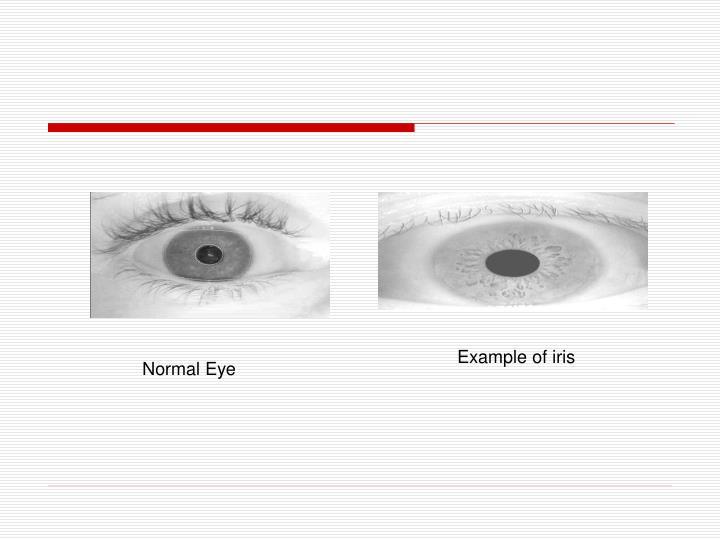 Example of iris