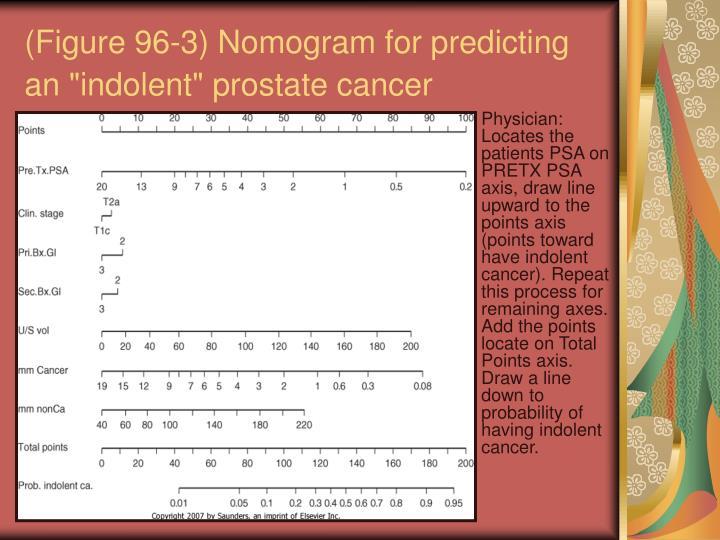 """(Figure 96-3) Nomogram for predicting an """"indolent"""" prostate cancer"""