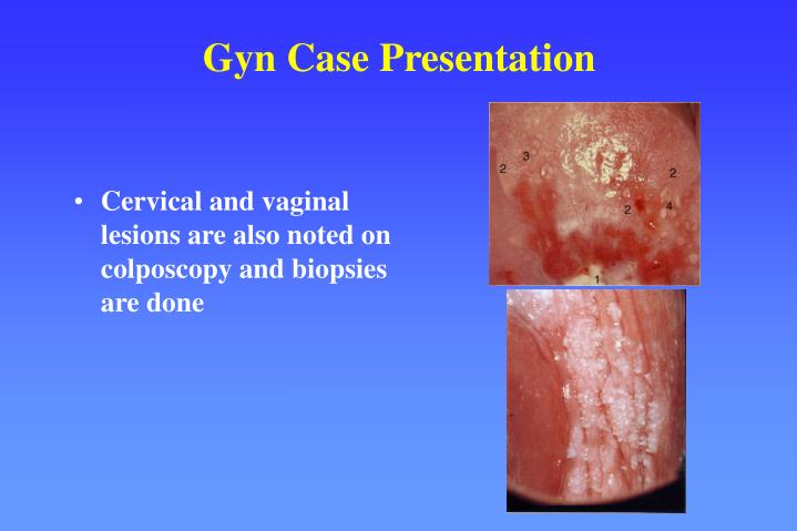 Cervical and vaginal lesions are also noted on colposcopy and biopsies are done