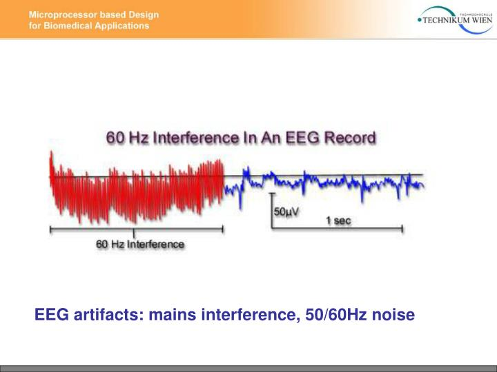 EEG artifacts: mains interference, 50/60Hz noise