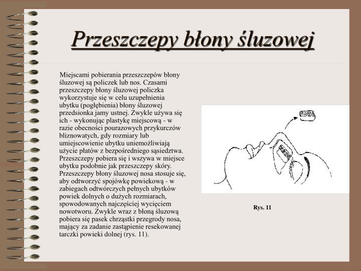 Przeszczepy błony śluzowej