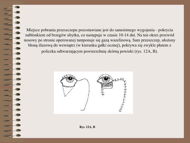 Miejsce pobrania przeszczepu pozostawiane jest do samoistnego wygojenia - pokrycia nabłonkiem od brzegów ubytku, co następuje w czasie 10-14 dni. Na ten okres przewód nosowy po stronie operowanej tamponuje się gazą wazelinową. Sam przeszczep, ułożony błoną śluzową do wewnątrz (w kierunku gałki ocznej), pokrywa się zwykle płatem z policzka odtwarzającym powierzchnię skórną powieki (rys. 12A, B).