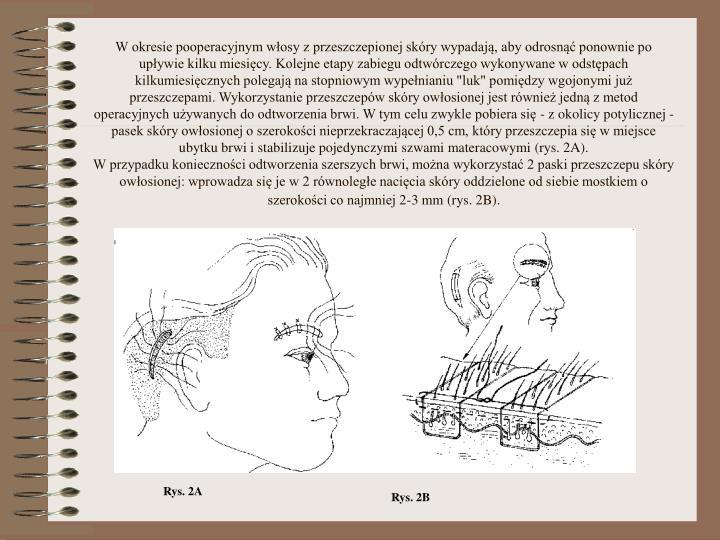 """W okresie pooperacyjnym włosy z przeszczepionej skóry wypadają, aby odrosnąć ponownie po upływie kilku miesięcy. Kolejne etapy zabiegu odtwórczego wykonywane w odstępach kilkumiesięcznych polegają na stopniowym wypełnianiu """"luk"""" pomiędzy wgojonymi już przeszczepami. Wykorzystanie przeszczepów skóry owłosionej jest również jedną z metod operacyjnych używanych do odtworzenia brwi. W tym celu zwykle pobiera się - z okolicy potylicznej - pasek skóry owłosionej o szerokości nieprzekraczającej 0,5 cm, który przeszczepia się w miejsce ubytku brwi i stabilizuje pojedynczymi szwami materacowymi (rys. 2A)."""