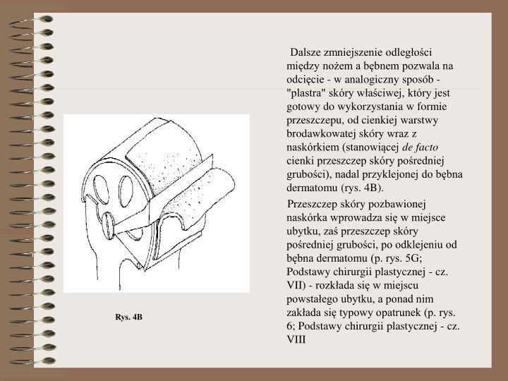 """Dalsze zmniejszenie odległości między nożem a bębnem pozwala na odcięcie - w analogiczny sposób - """"plastra"""" skóry właściwej, który jest gotowy do wykorzystania w formie przeszczepu, od cienkiej warstwy brodawkowatej skóry wraz z naskórkiem (stanowiącej"""