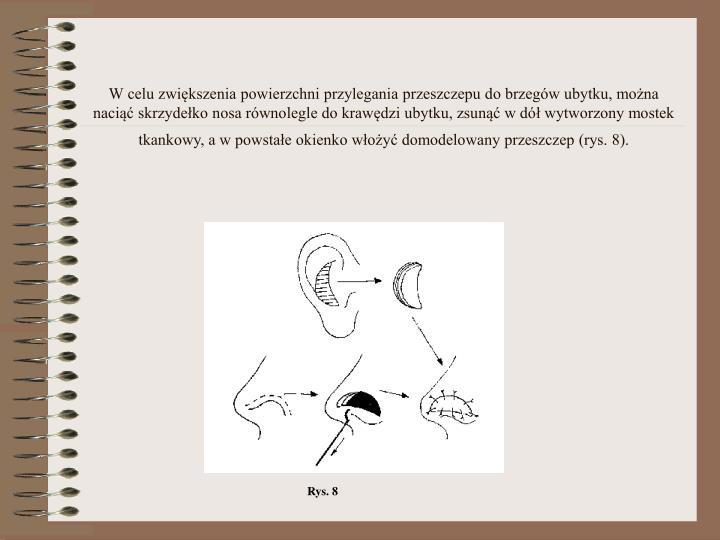 W celu zwiększenia powierzchni przylegania przeszczepu do brzegów ubytku, można naciąć skrzydełko nosa równolegle do krawędzi ubytku, zsunąć w dół wytworzony mostek tkankowy, a w powstałe okienko włożyć domodelowany przeszczep (rys. 8).