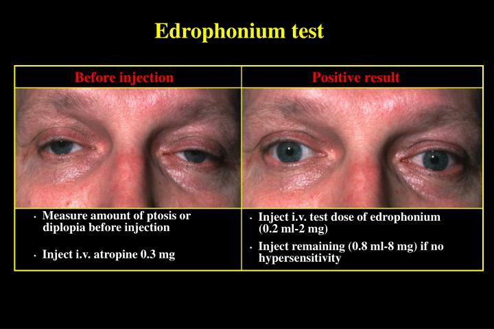 Edrophonium test