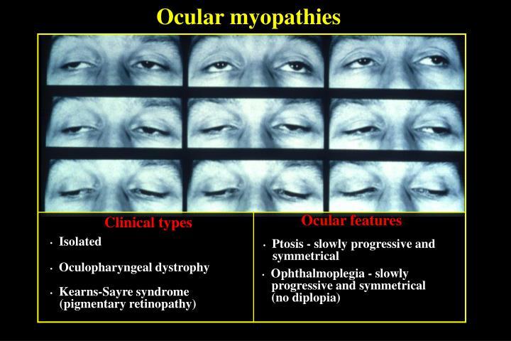 Ocular myopathies