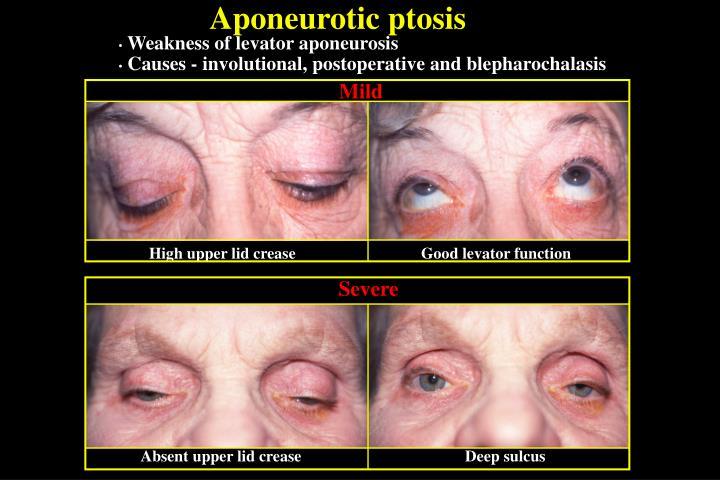 Aponeurotic ptosis