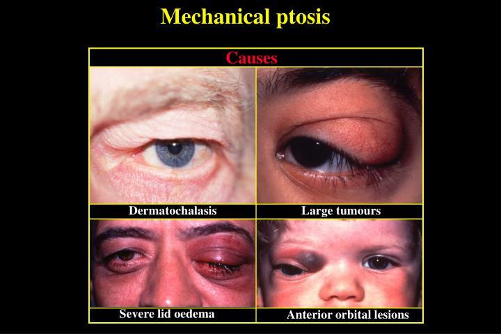 Mechanical ptosis