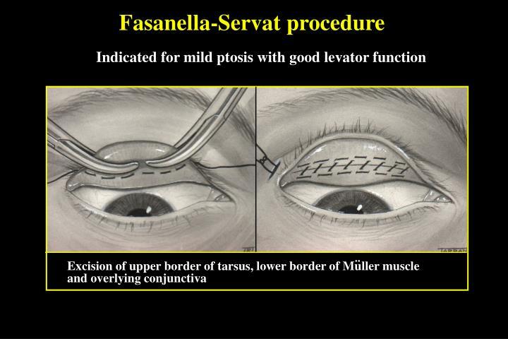 Fasanella-Servat procedure