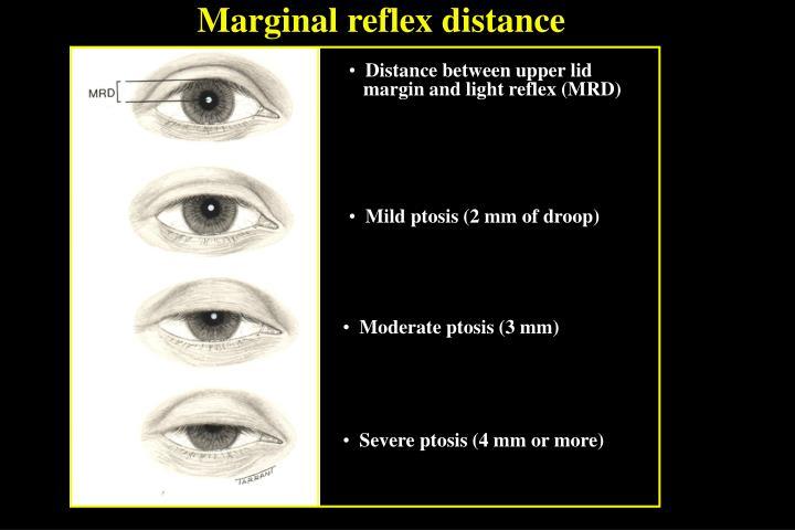 Marginal reflex distance