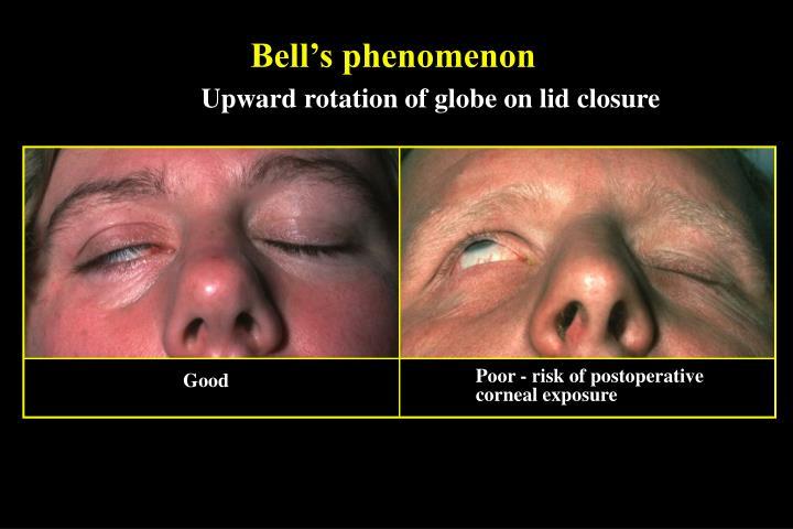 Bell's phenomenon
